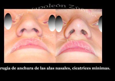 1 3 HD correccion de anchura de nariz