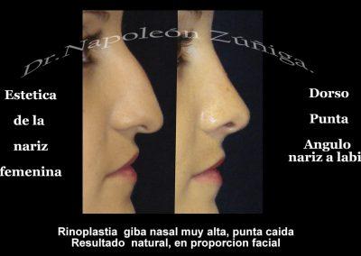 Caso 5 1 Estetica nariz fem perfil
