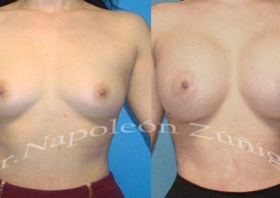 HD aumento de senos afr12