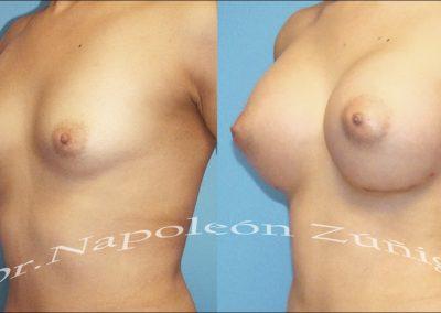 HD aumento de senos flati12