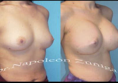 HD aumento de senos lat der12