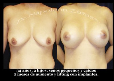HD aumento y lifting con implantes fr