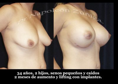 HD aumento y lifting con implantes obl der
