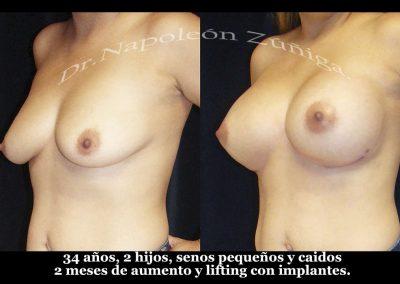HD aumento y lifting con implantes obl izq