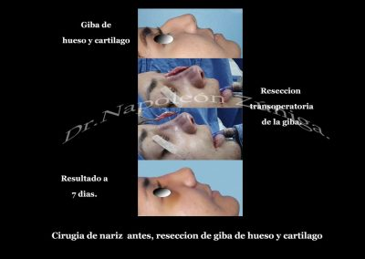 HD caso 1a 1 Reseccion de giba