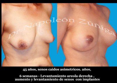 HD lifing de areola, aumento y leantamiento con implantes 2