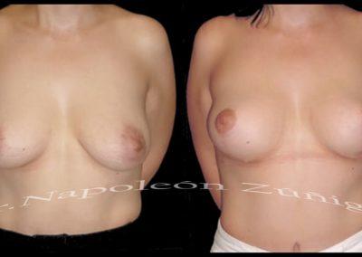 HD mastopexia sin implantes frt