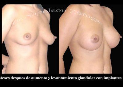 HD6 meses despues de levantamiento glandular e implantes latd