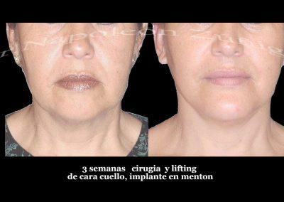 HD caso 3 1 lifting y menton
