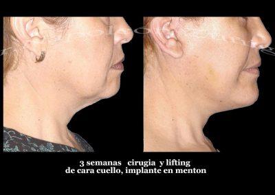 HD caso 3 2 lifting y menton