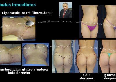HD 1 Lipoescultura de cintura lipotrsferencia paciente B