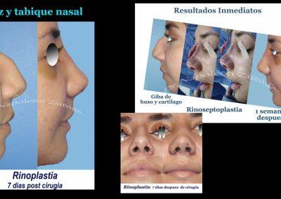 HD De Nariz y Tabique nasal