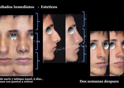 Cirugia de Nariz y Tabique