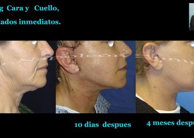Lifting Cara y Cuello