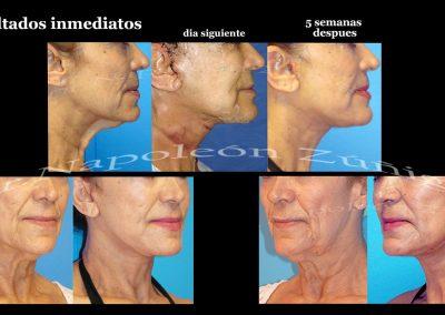 Cirugía de cara y cuello